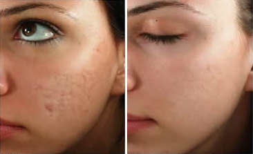 Micro Needling Renew Aesthetic Clinic