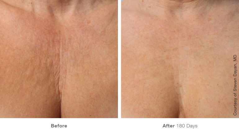 Ultherapy decolt before/after Renew Aesthetic Clinic
