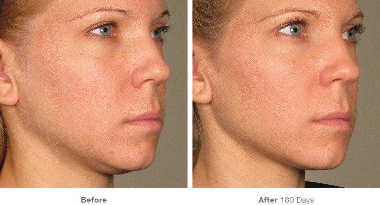 Ultherapy before/after Renew Aesthetic Clinic
