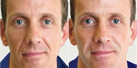 Treatment for man Renew Aesthetic Clinic