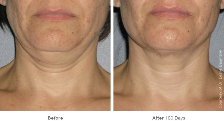 Ultherapy neck Renew Aesthetic Clinic