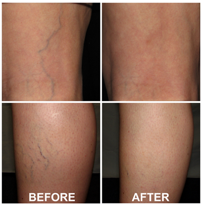 Vein Treatment Before/After Renew Aesthetic Clinic