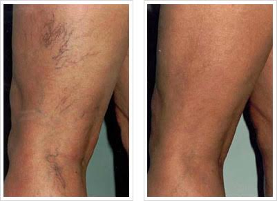 Sclerotherapy Vein Treatment Renew Aesthetic Clinic