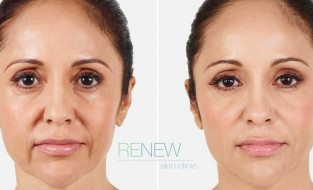 Dermal Fillers – Get Plumped Skin with Fewer Lines in Just 20 Minutes
