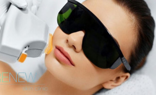 5 Reasons to Choose IPL Photo Rejuvenation at Renew Skin Clinic