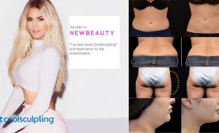The unique CoolSculpting® fat-freezing treatment arrives at Renew Clinic