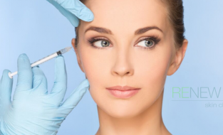 Anti-Wrinkle Injection Clinics at Renew – What 's Involved