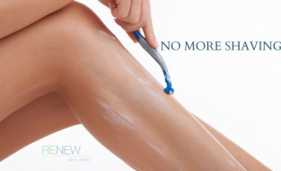 Release Yourself from the Ordeal of Regular Hair Removal with Laser Hair Removal at Renew