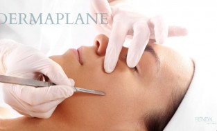 Dermaplaning – The Exfoliating Hollywood Staple Comes to Renew