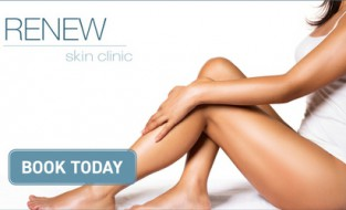 Summer is here treat yourself to Icoone/Endermologie Cellulite & Inch loss treatments.