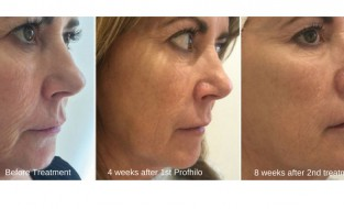 Renew is delighted to announce the arrival of Profhilo, an outstanding, award winning skin remodeling product.