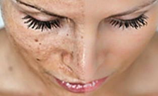 9 Things You Need To Know About Melasma