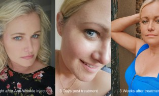 ANTI AGEING – A SERIES by Lorna Claire Weightman