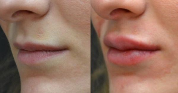 Lip Filler Treatment Image Renew Clinic