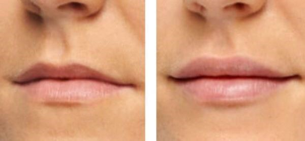 Lip Filler Treatment Image Renew Skin Clinic
