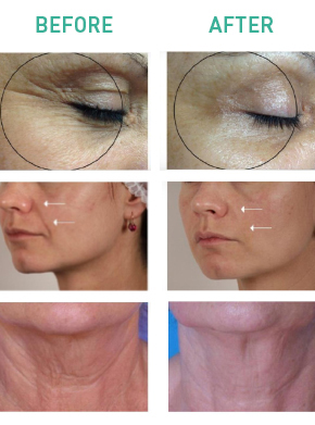 OxyGeneo Before After Renew Aesthetic Clinic